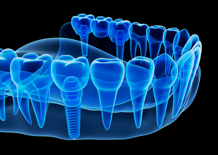 Teeth-in-an-Hour Dental Implants in Mesa Arizona at East Valley Implant & Periodontal Center