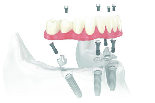 Teeth in a Day in Mesa, AZ at East Valley Implant & Periodontal Center