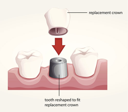 Dental Crown East Valley Implant & Periodontal Center AZ 85204
