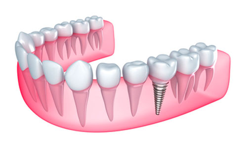 Dental Implants Could Help You Improve Oral and Overall Health