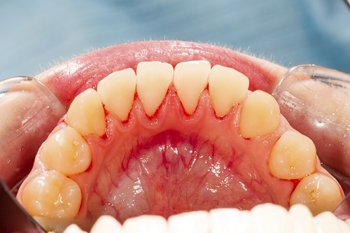 Oral Cancer Can Stem from Gum Disease If It Is Left Untreated