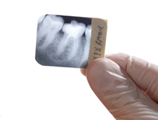 Professional Cleanings, Exams, and X-Rays in Mesa & Scottsdale, Arizona at East Valley Implant & Periodontal Center